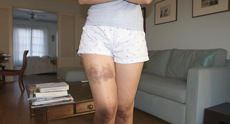 can-anemia-cause-bruising
