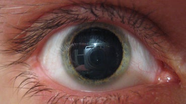 What Can Cause Dilated Pupils?