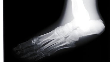 How Can You Fix Flat Feet With Treatment?