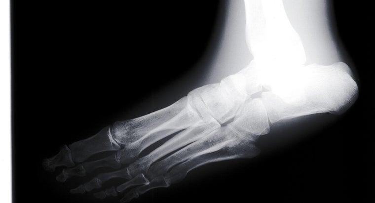 can-fix-flat-feet-treatment