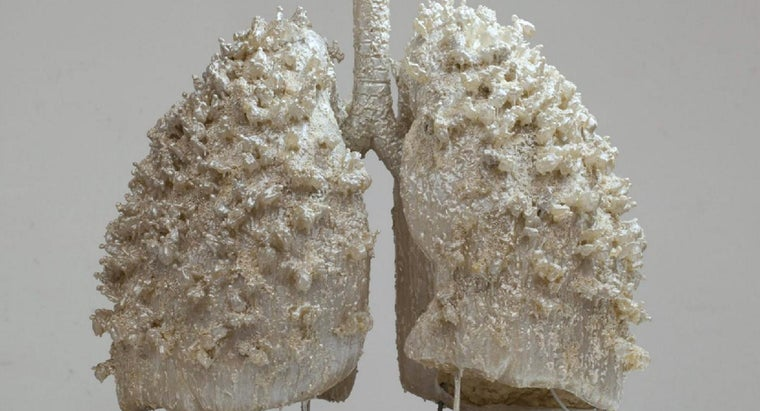 can-person-live-one-lung