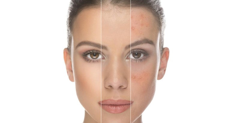 can-pictures-rosacea-online