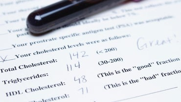 Where Can You Find a Free Printable Cholesterol Level Chart?