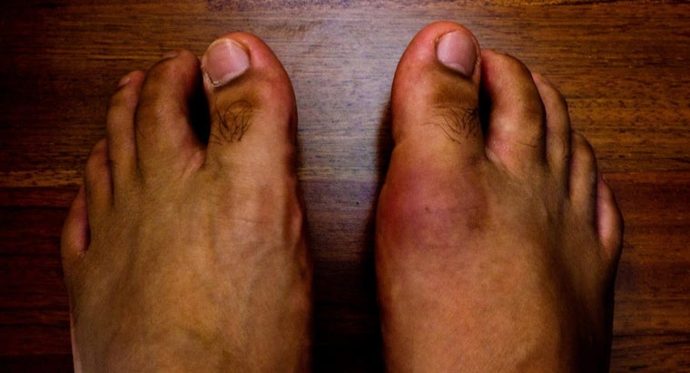 causes-gout