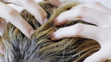 What Causes Itching Scalp and Hair Loss?