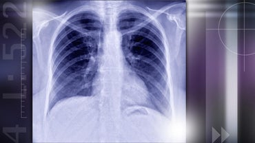 What Causes Lung Nodules?