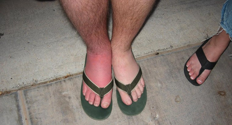 causes-lymphedema