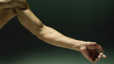 What Causes Muscle Pain and Weakness in Arms?