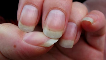 What Causes Ridges in Fingernails?