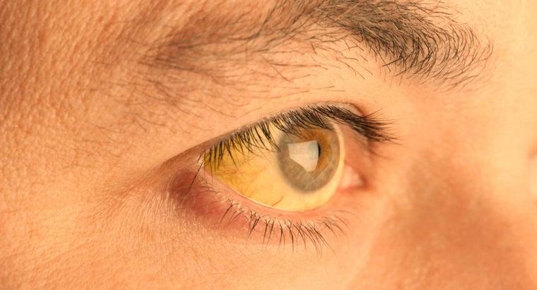 causes-skin-under-eyes-turn-yellow