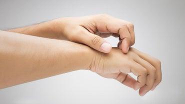 What Causes Spongiotic Dermatitis?