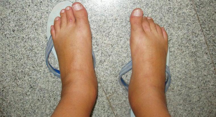 causes-swollen-feet