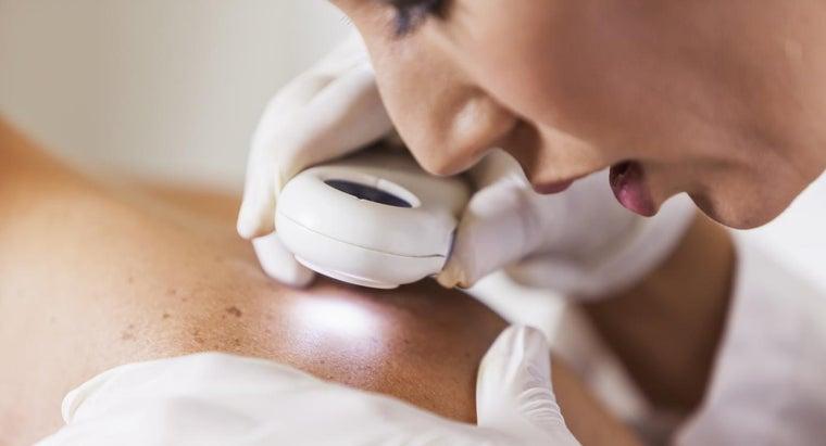 causes-treatments-boils