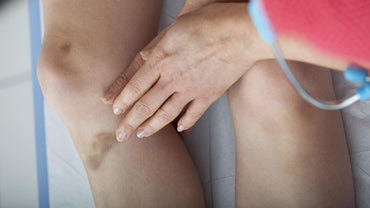 What Causes Unexplained Bruising?