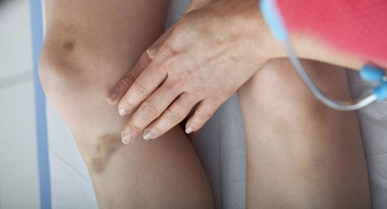 causes-unexplained-bruising
