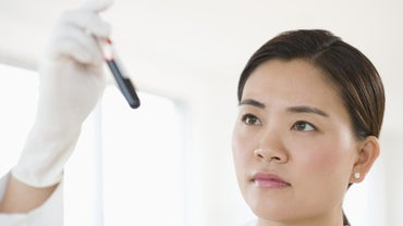 What Is a CMP Blood Test?