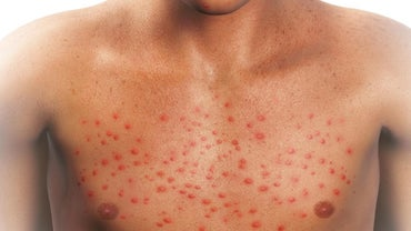 What Could Cause a Red Rash All Over the Body?