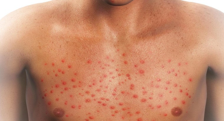 could-cause-red-rash-over-body