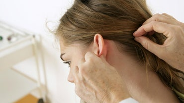 What Is a Cyst Behind the Ear?
