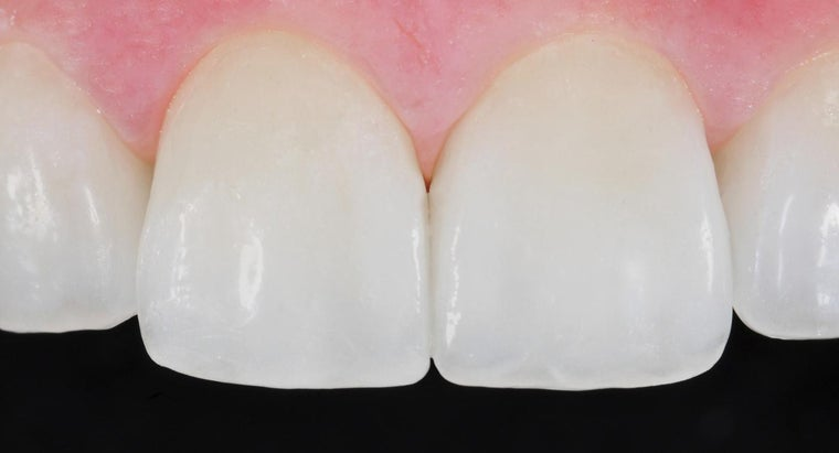 dental-veneers-covered-insurance