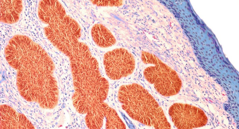 difference-between-carcinoma-sarcoma