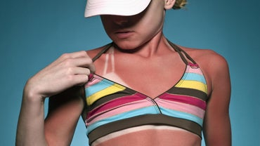 What Is the Fastest Way to Heal a Sunburn?
