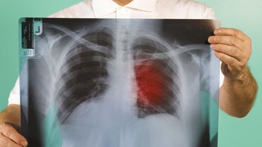 What Can Be Expected in the Final Stages of Lung Cancer