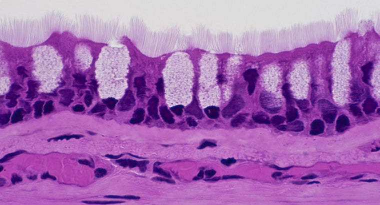 goblet-cells-found