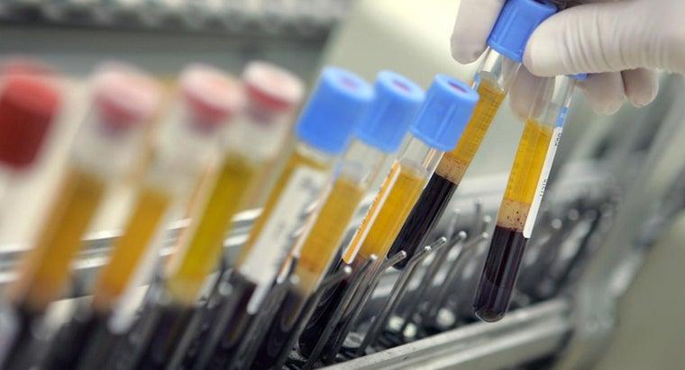 hct-blood-test