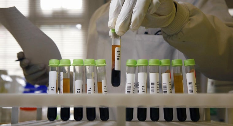 hemoglobin-reading-blood-test-mean