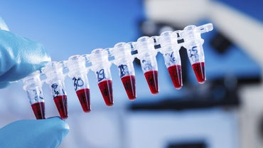 What Is a High Platelet Count Level?
