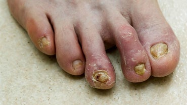 What Are Home Remedies for Toenail Fungus?