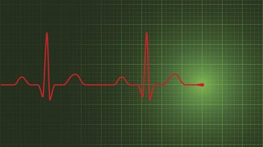 What Is a Hospital Step Down or Telemetry Unit?