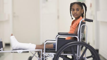 How Long Does It Take to Recover From a Broken Leg?