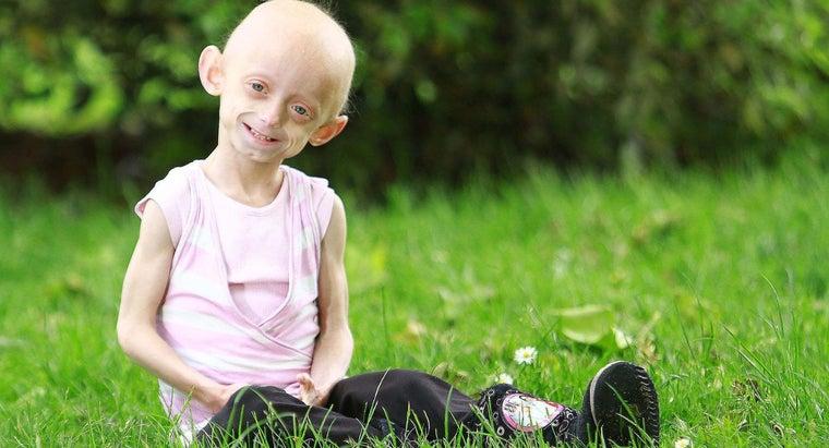 interesting-progeria