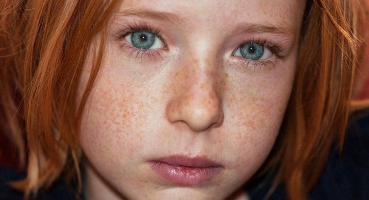 lemon-juice-really-rid-freckles