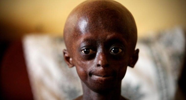 limitations-person-progeria