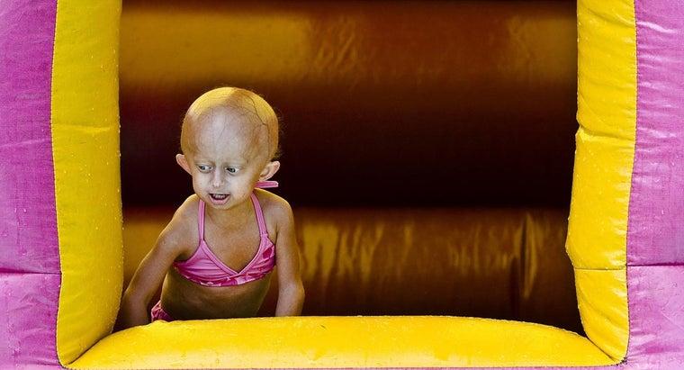long-can-live-progeria