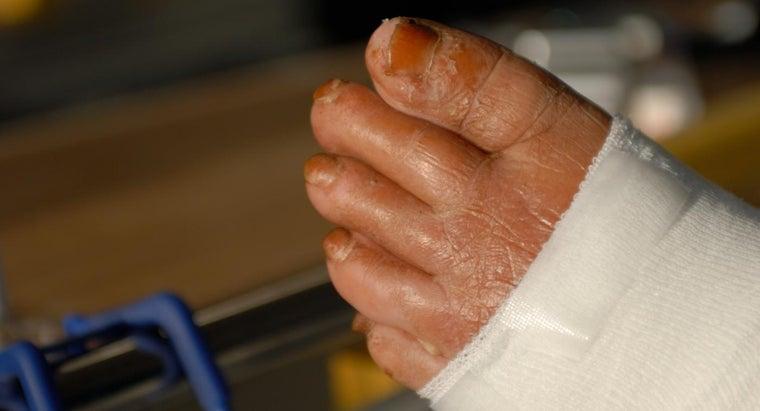 long-cellulitis-heal