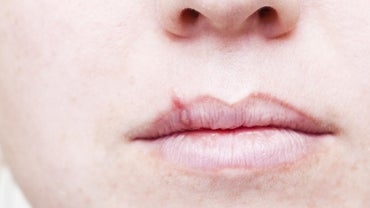 How Long Do Cold Sores Last When Using Abreva?