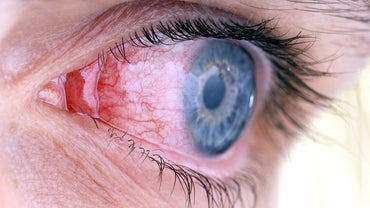 How Long Do I Have to Stay Off of Work If I Have Pink Eye?