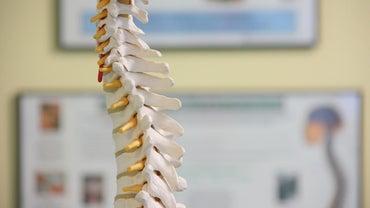 What Is Lumbar Spondylosis?