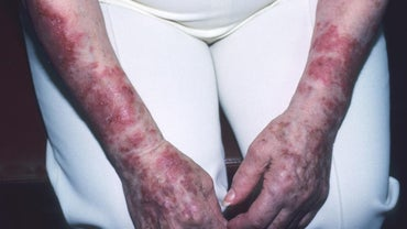 How Is Lupus Spread?