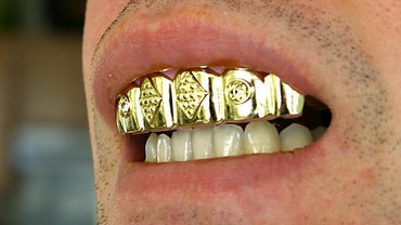 How Do You Make Gold Teeth at Home?