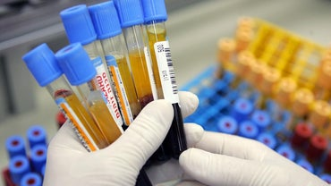 """What Is """"MCH"""" in a Blood Test?"""