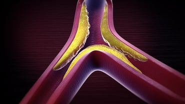 What Is Mixed Hyperlipidemia?