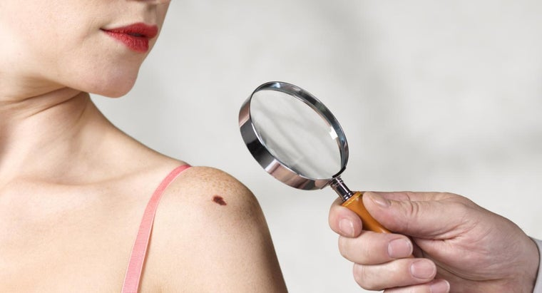 moles-removed-surgery