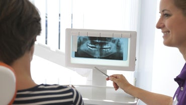 How Much Should I Expect to Pay for Dental Implants?