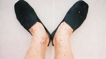 What Are Some Names of Skin Diseases?