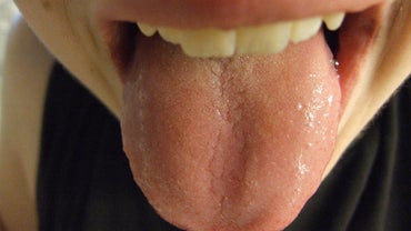 What Does a Normal Tongue Look Like?